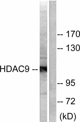 Western blot - HDAC9 antibody (ab53102)
