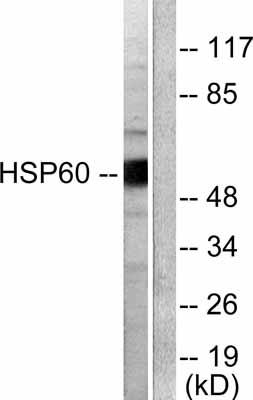 Western blot - Hsp60 antibody (ab53109)
