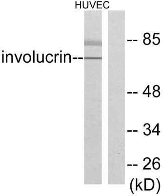 Western blot - Involucrin antibody (ab53112)