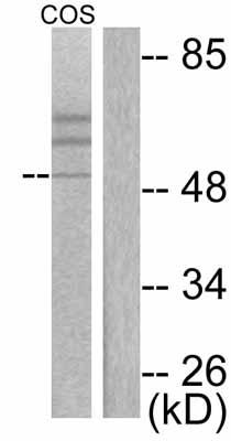Western blot - Cytokeratin 15 antibody (ab53116)