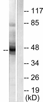 Western blot - Cytokeratin 18 antibody (ab53118)