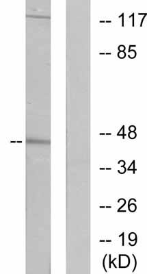 Western blot - Cytokeratin 19 antibody (ab53119)