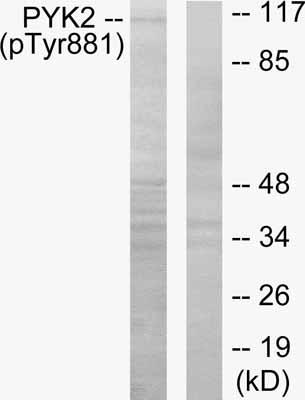 Western blot - PYK2 (phospho Y881) antibody (ab53127)