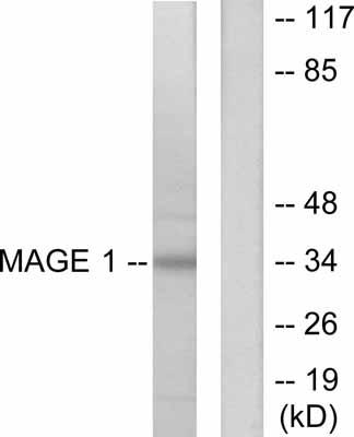 Western blot - MAGE 1 antibody (ab53131)