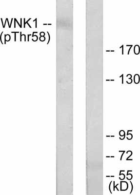 Western blot - WNK1 (phospho T58) antibody (ab53137)
