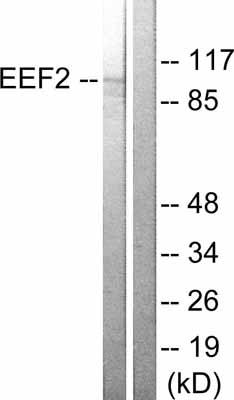 Western blot - EEF2 antibody (ab53139)