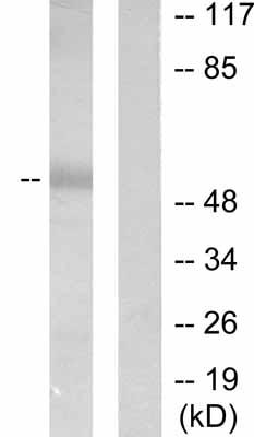 Western blot - MMP1 antibody (ab53142)