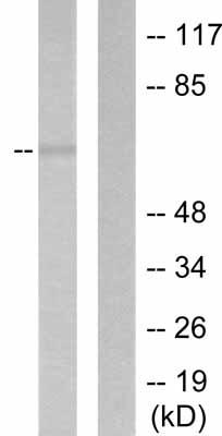 Western blot - MMP16 antibody (ab53145)
