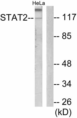 Western blot - STAT2 antibody (ab53149)