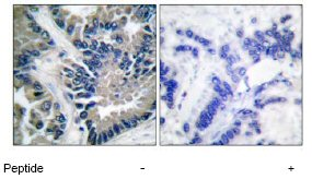 Immunohistochemistry (Paraffin-embedded sections) - STAT2 antibody (ab53149)