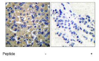 Immunohistochemistry (Paraffin-embedded sections) - WNK1 antibody (ab53151)