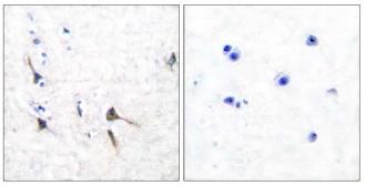 Immunohistochemistry (Paraffin-embedded sections) - Kv3.2 antibody (ab53158)