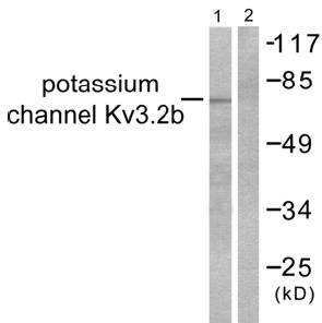 Western blot - Kv3.2 antibody (ab53158)