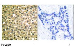 Immunohistochemistry (Paraffin-embedded sections) - Retinoic Acid Receptor beta antibody (ab53161)
