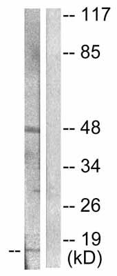 Western blot - beta Synuclein antibody (ab53167)