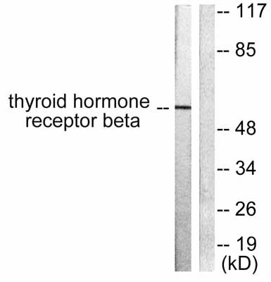 Western blot - Thyroid Hormone Receptor beta antibody (ab53170)