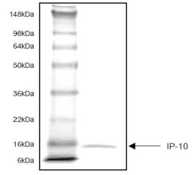 SDS-PAGE - IP10 protein (ab53380)