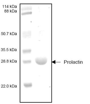 SDS-PAGE - Prolactin protein (ab53385)