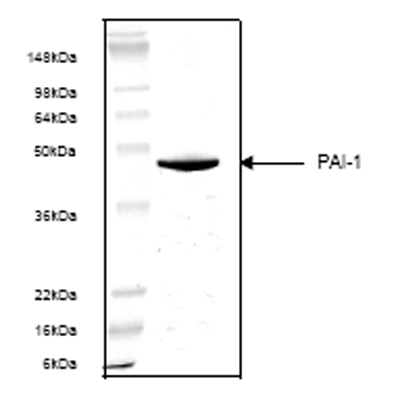SDS-PAGE - PAI1 protein (ab53388)