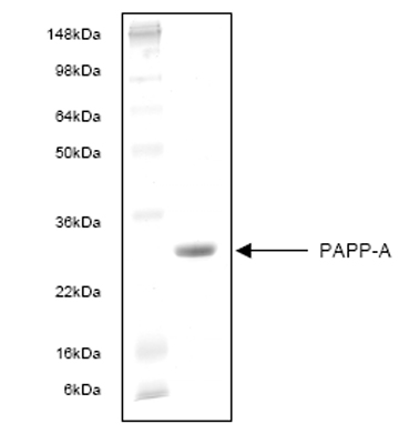 SDS-PAGE - PAPP A protein (ab53389)