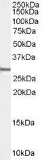 Western blot - Syntenin antibody (ab53552)