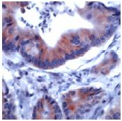 Immunohistochemistry (Formalin/PFA-fixed paraffin-embedded sections) - IRS1 antibody, prediluted (ab53649)