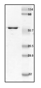 SDS-PAGE - Cytokeratin 18 protein (His tag) (ab53663)