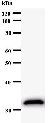Western blot - EPM2A antibody [2323C3a] (ab53670)
