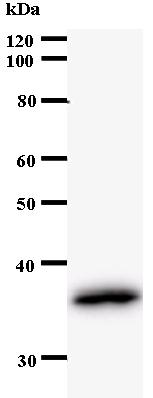 Western blot - GARNL1 antibody [2382C1a] (ab53671)