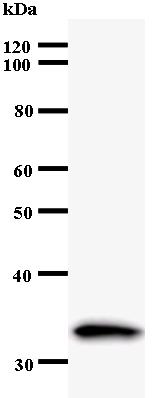 Western blot - ZNF174 antibody [3441C2a] (ab53674)