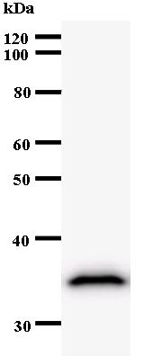 Western blot - ZNF544 antibody [3359C4a] (ab53675)
