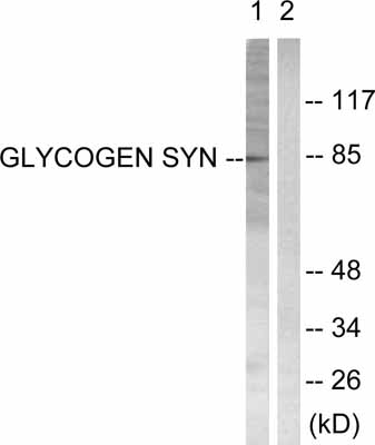 Western blot - Glycogen synthase 1 antibody (ab53697)