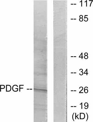 Western blot - PDGF BB antibody (ab53716)