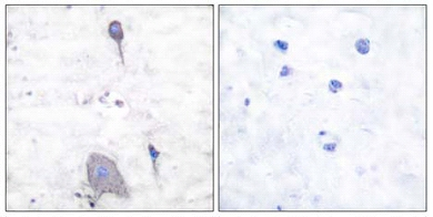 Immunohistochemistry (Paraffin-embedded sections) - SIRP alpha antibody (ab53721)