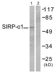 Western blot - SIRP alpha antibody (ab53721)