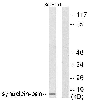 Western blot - pan Synuclein antibody (ab53726)