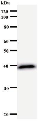 Western blot - Anti-TIS11B antibody [3415C2b] (ab53747)