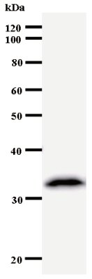 Western blot - KPNA4 antibody [2500D3a] (ab53751)