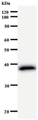 Western blot - FER antibody [2358C3a] (ab53754)