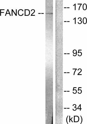 Western blot - FANCD2 antibody (ab53764)