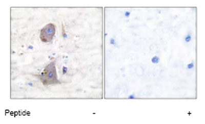 Immunohistochemistry (Paraffin-embedded sections) - Glucose Transporter GLUT1 antibody (ab53767)