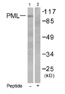 Western blot - PML Protein antibody (ab53773)