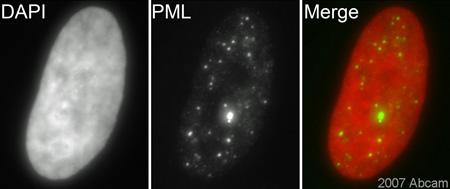 Immunocytochemistry/ Immunofluorescence - PML Protein antibody (ab53773)