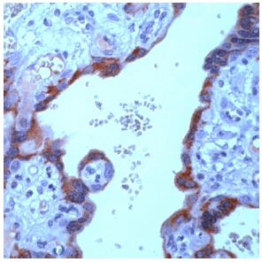 Immunohistochemistry (Formalin/PFA-fixed paraffin-embedded sections) - hCG beta antibody [SPM105], prediluted (ab53911)
