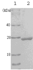 SDS-PAGE - PGP9.5 protein (ab53962)