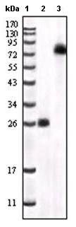Western blot - BTK antibody [7F12H4,6G5F6] (ab54219)