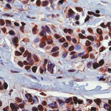 Immunohistochemistry (Formalin/PFA-fixed paraffin-embedded sections) - Hsp90 alpha antibody, prediluted (ab54265)