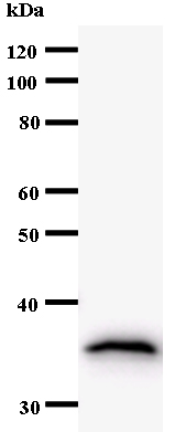 Western blot - DNA Polymerase delta, catalytic subunit antibody [2761C6a] (ab54282)