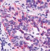 Immunohistochemistry (Formalin/PFA-fixed paraffin-embedded sections) - TIMP2 antibody [SPM356], prediluted (ab54443)