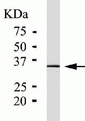 Western blot - PIM1 antibody [ZP003] (ab54503)